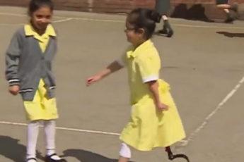 Как дети реагируют на 7-летнюю девочку с протезом ноги