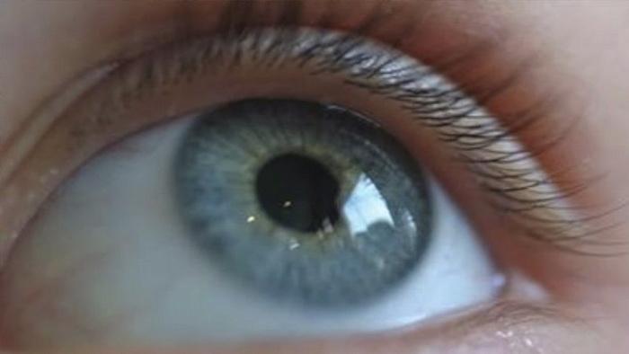 Что значат прозрачные штуки в глазах